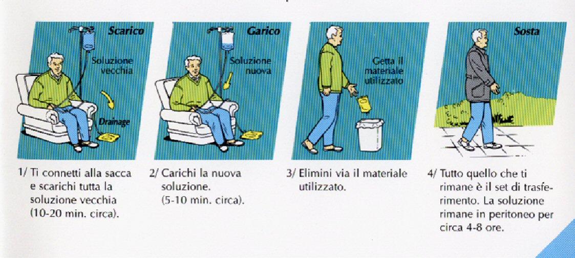 LA CAPD (Dialisi Peritoneale Manuale )